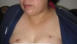 印尼壹名奇女子,身體會長出鐵線!!太恐怖了吧!?竟有這樣的事!!