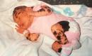 19歲少女從小就被人嘲笑為斑點狗,現在她覺得自己與眾不同更美